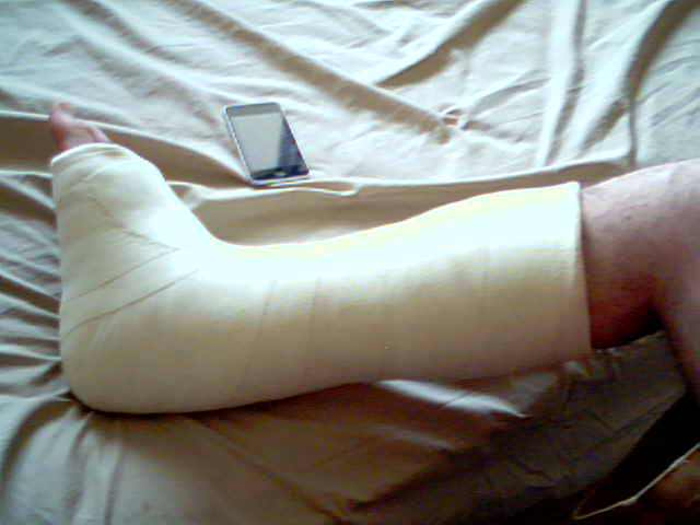 My Heel Cord Lengthening Surgery